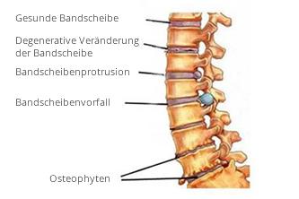 Fig. 1: Entzündung der Nervenwurzeln